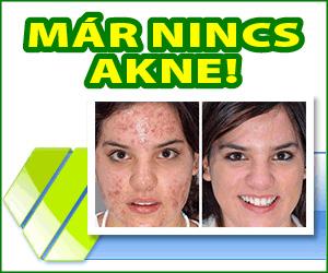 Derminax - akne